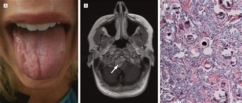 Unilateral Tongue Atrophy and Fasciculation | Neuro